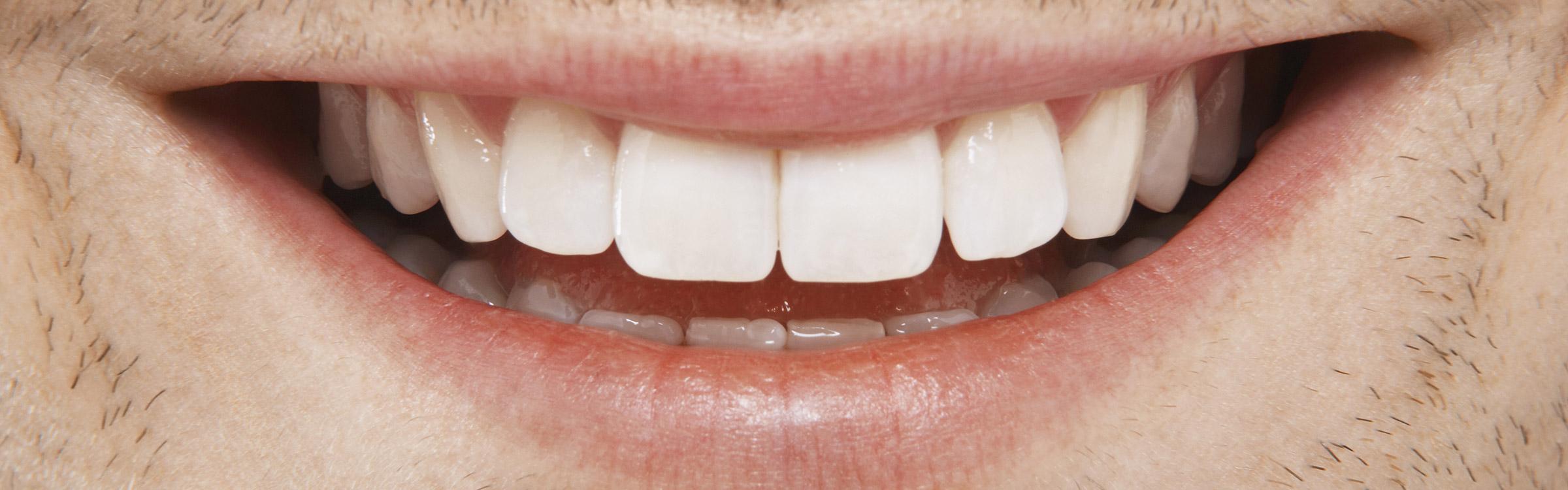 Teaser tanden